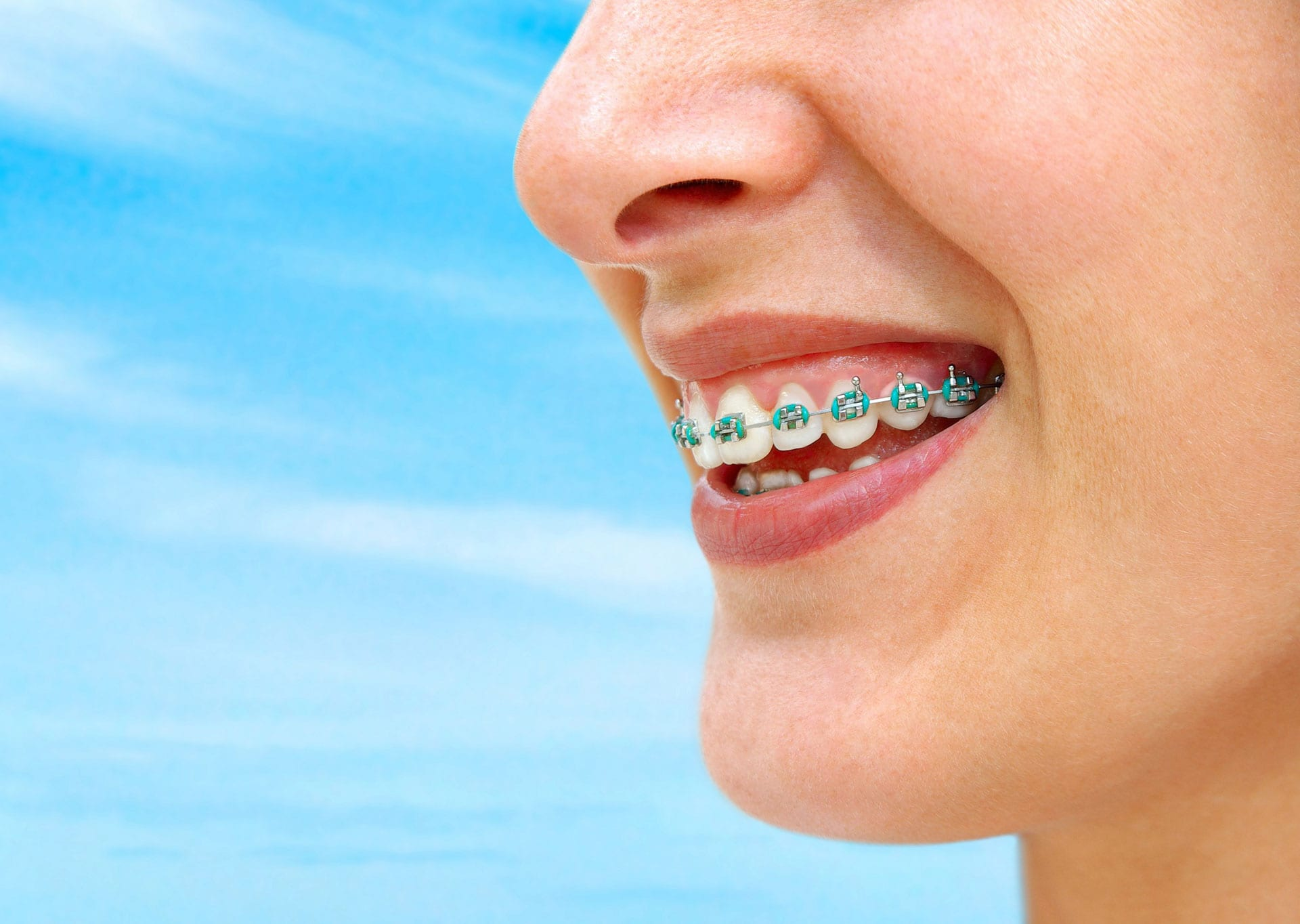 close up of teen girl with braces with a blue sky background